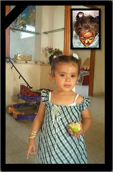 Hala Abu Zbeekha, de 3 años de edad asesinada por Israel